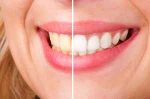 How Does Teeth Whitening Work; Why Consider It?